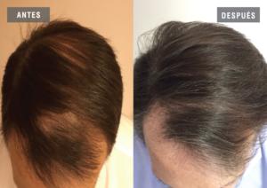 El tratamiento de la alopecia por Regenera Activa es desarrollado tanto para hombres como para mujeres y estimula la creación de nuevo pelo y su crecimiento en un tiempo mínimo, así como el desarrollo del ciclo capilar evitando la caída y mejorando la calidad y densidad del pelo ya existente.